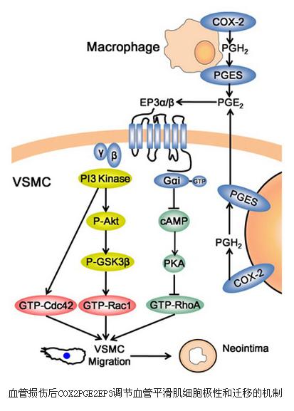 细胞从中膜到内膜的迁移是血管内壁增厚的重要步骤